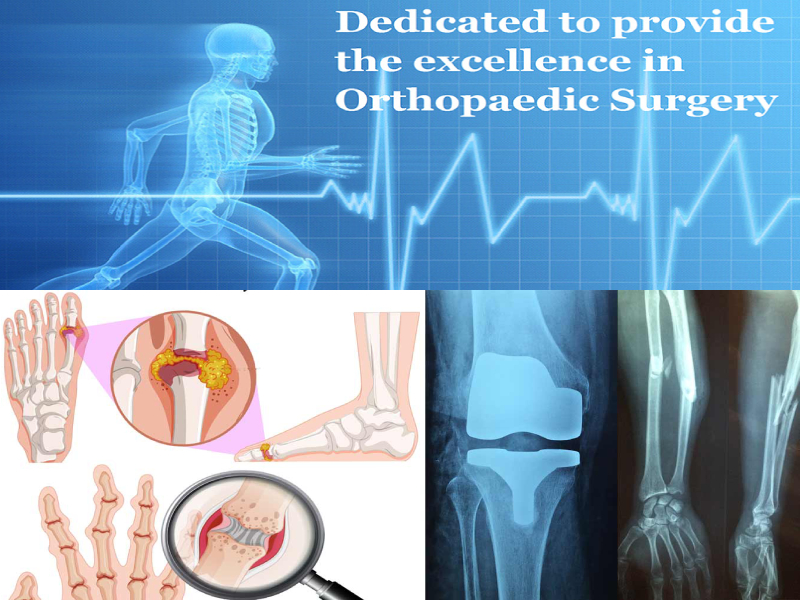 Best Ortho Hospitals in Coimbatore
